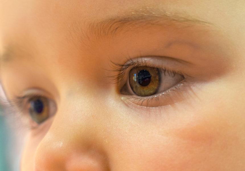 Glasige Augen Baby